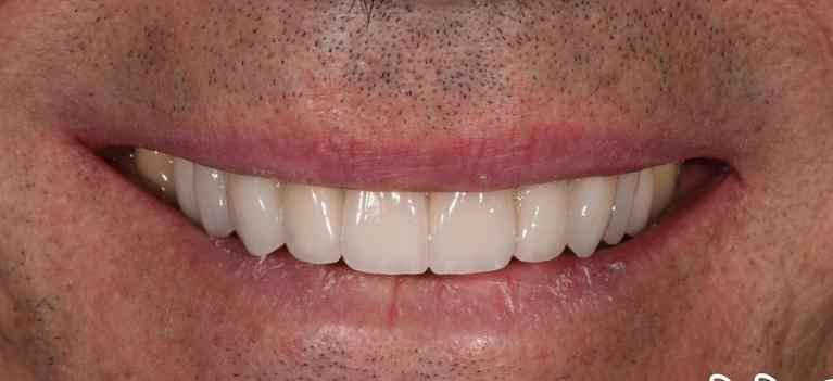 Zirconia-Treatment-After-Image